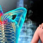 Fibromialgia, enfermedad que causa dolor y cansancio crónicos