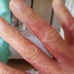 Hiperuricemia y gota también afectan a las mujeres, afirma experto